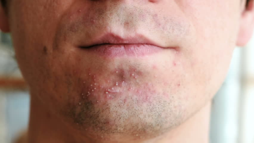 Skin irritation after shaving. Man rubs his hand pimples on his chin closeup.   Shutterstock HD Video #1007994883