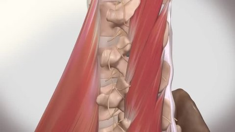Chronic Low Back Pain. Animation showing pain in the lower back