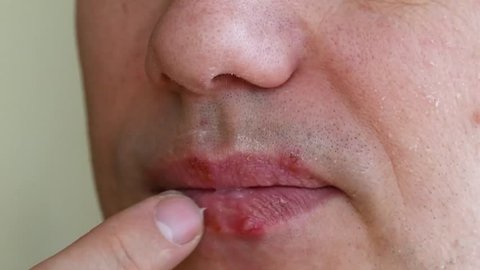 herpes simplex virus infection. Lips treatment by cream. Male face. slow motion
