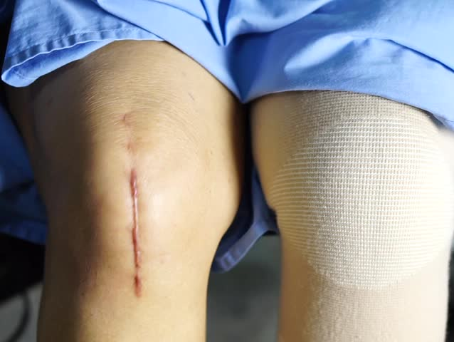 Asian senior or elderly old lady woman patient show scars and exercise surgical total knee joint replacement Suture wound surgery arthroplasty on wheelchair nursing hospital ward : healthy medical. | Shutterstock HD Video #1011178943