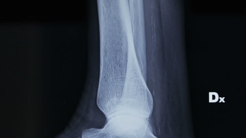 Lateral tracking on X-ray plate of fibula and fibula and of human foot bones