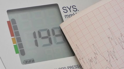 modern digital blood pressure monitor and cardio graph, close-up