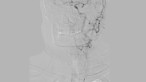 Brain vessels angiography front view | Cerebral angiogram. Black and white monitoring of head blood vessels x-ray scan while radiography examination.
