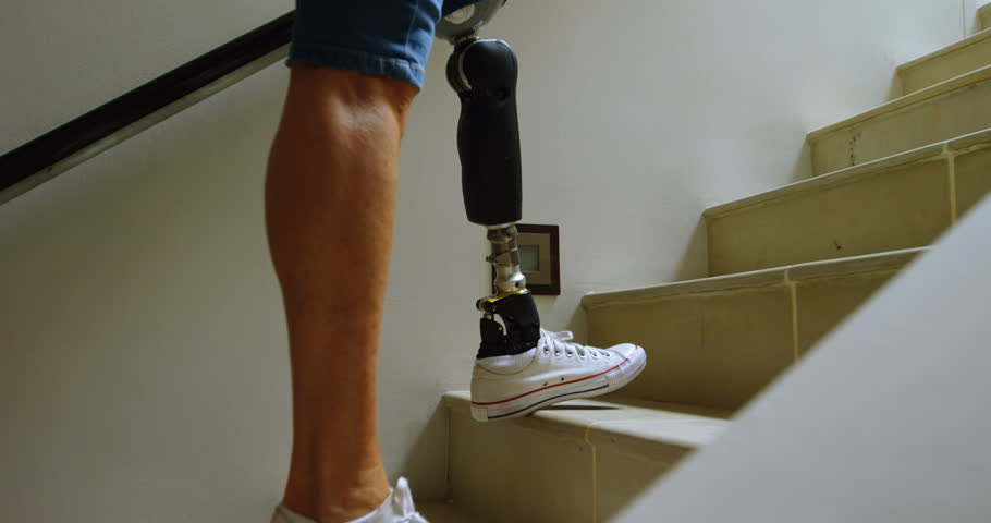 Disabled woman with prosthetic leg moving upstairs at home 4k | Shutterstock HD Video #1012346273