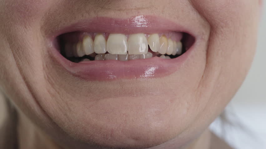 Close up mature woman mouth smiling happy poor oral hygiene dental health maco | Shutterstock HD Video #1013160683