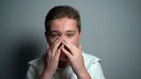 Young boy with pimples problem touching his face skin
