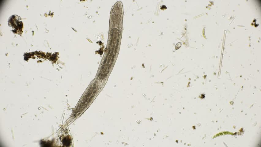 Flat ciliated worm Turbellaria under a microscope