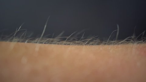 Arms Hairs Standing Up, Macro