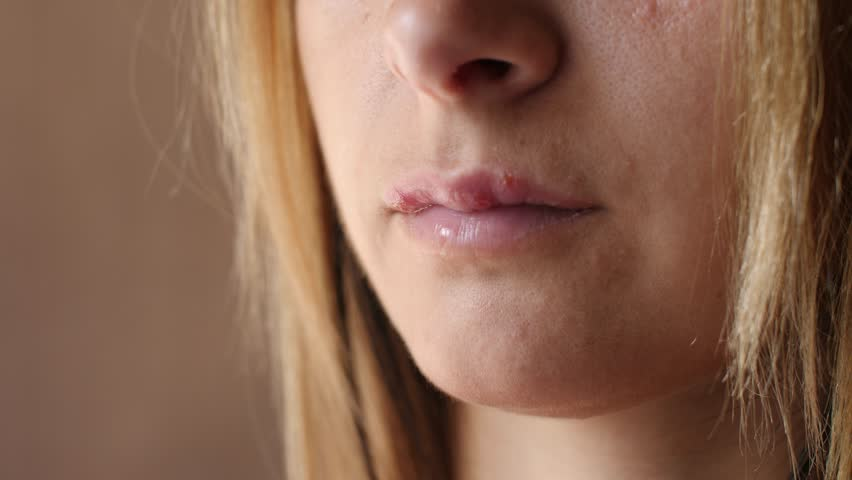 Women's lip ulcers herpes closeup. Beautiful lips were covered with cold sores. The girl licks her lips covered with herpes.