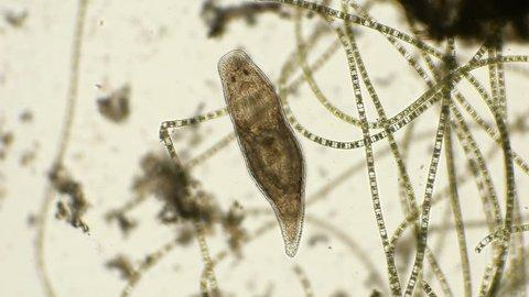 rectum worm TURBELLY of the genus Dalyellia, under a microscope
