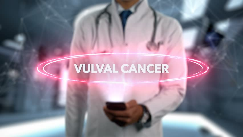 Vulval cancer - Male Doctor With Mobile Phone Opens and Touches Hologram Illness Word