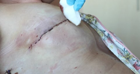 Bandaging of drained patient after breast surgery