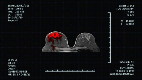 MRI Scan monitor Breast Cancer Detection. High-tech radiology examinations images of female breast on medical screen with additional medical data, more options in my portfolio
