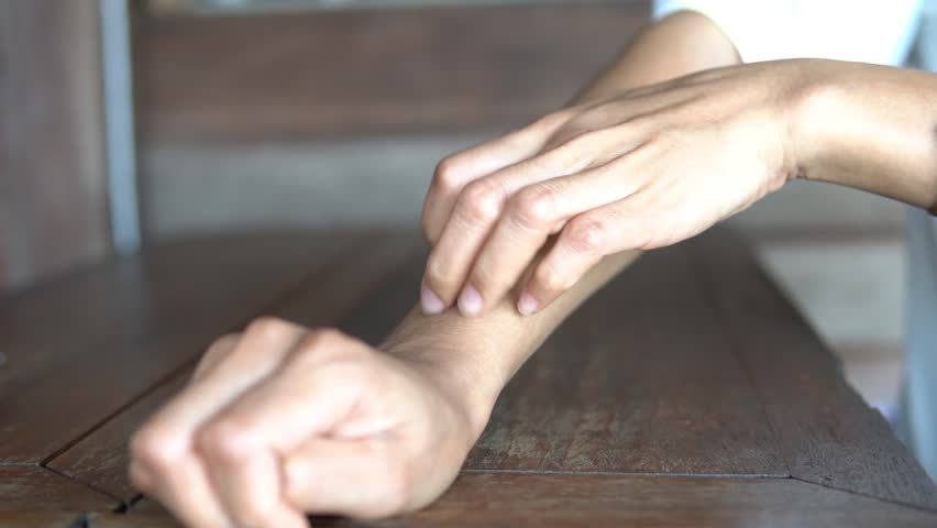 Woman scratches the itch with hand on the table, Concept with Health care And Medicine.   Shutterstock HD Video #1026611543