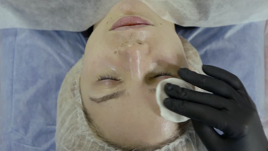 Face girl cleaning skin with cotton pad after BB glow procedure. modern technologies to preserve youth | Shutterstock HD Video #1026930443