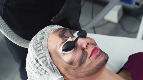 Close-up hands beautician makes carbon peeling procedure on face of young woman in clinic. Laser flash cleans skin of patient face