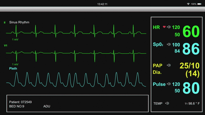 Heart and patient monitor showing patient vital signs. | Shutterstock HD Video #1040937563