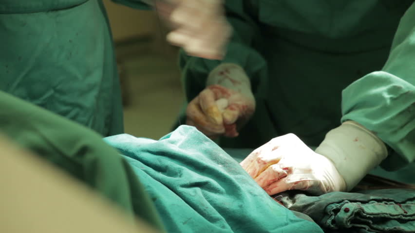 Surgeons performing stitching after surgical operation, caesarean section close up. Gynecologist and midwife giving birth. Cesarean section, c-section. Childbirth. Parturition. Maternity ward. 30 fps.