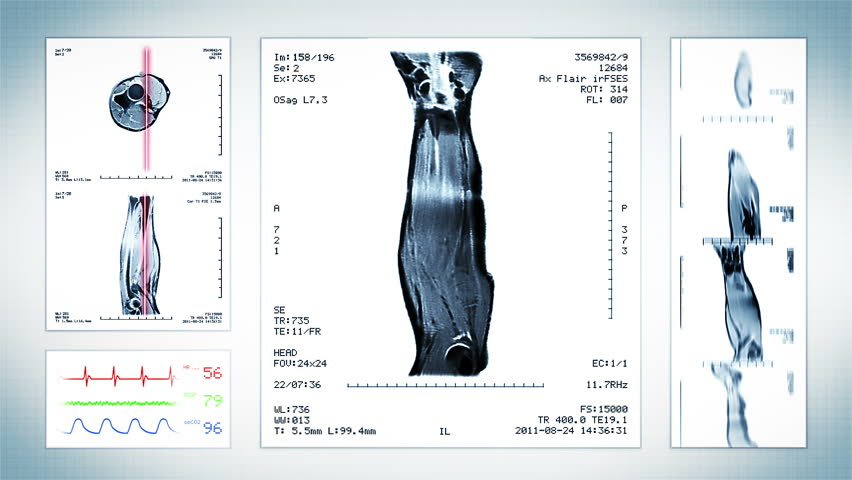 Video de stock de pelvis mri scan. white. 4 videos   13812518 ...
