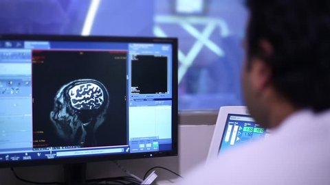 Pictures of the brain scan on the monitor. Research on magnetic resonance imaging MRI in the medical clinic - Stock Footage