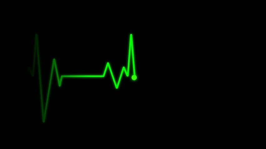EKG Cardiogram monitor