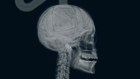 X-ray of electrocuted head.