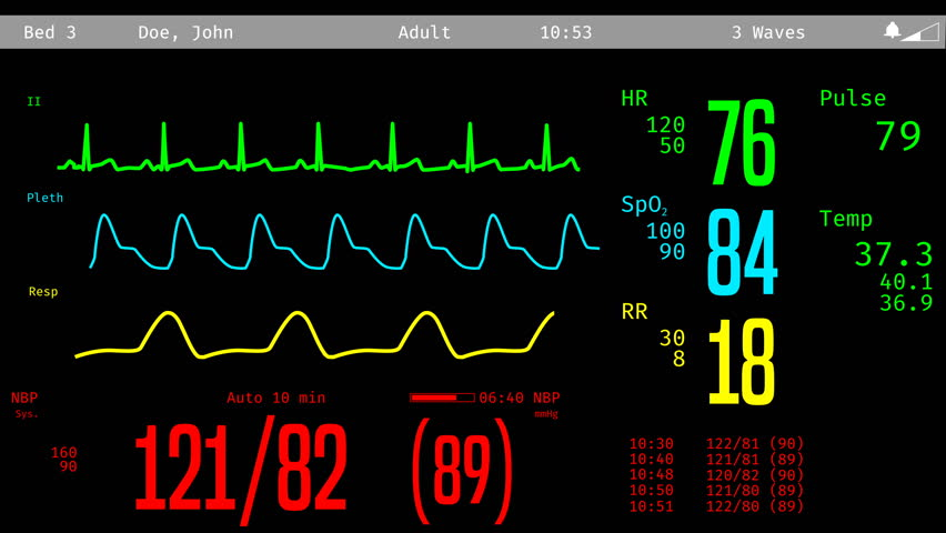 Monitoring of Patients Condition, Vital Stock Footage Video