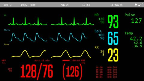 Patient's revival after clinical death, vital signs rising on ICU monitor. Medical ICU monitor with patient's vital signs