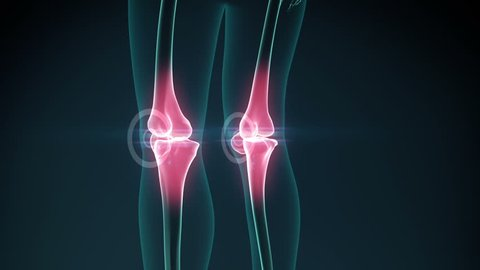 Knee pain animation. Healthy joint and unhealthy painful joint with osteoarthritis.