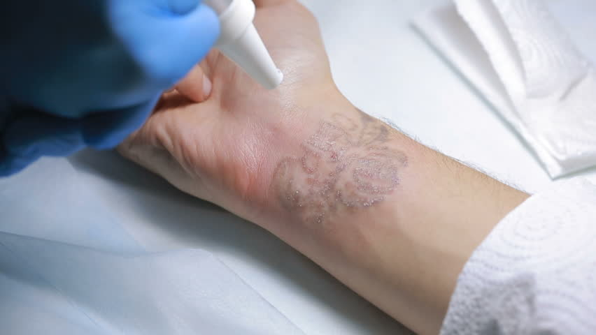 Laser Tattoo Removal With Hand Stock Footage Video 100 Royalty Free 23086483 Shutterstock