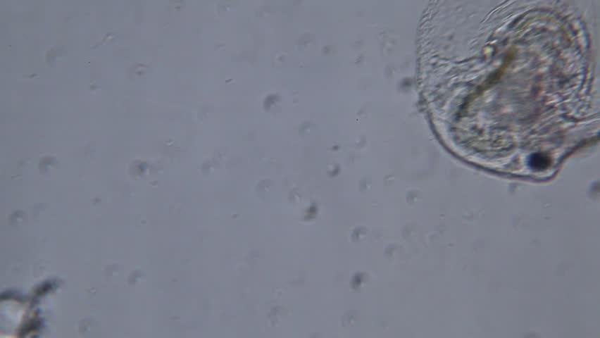 Water flea (Moina) under microscope view.   Shutterstock HD Video #23198893