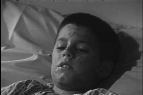 1960s: The opening moments of a 1960s film detailing the development of a vaccine for measles shows the measles virus, the illness itself in a young boy
