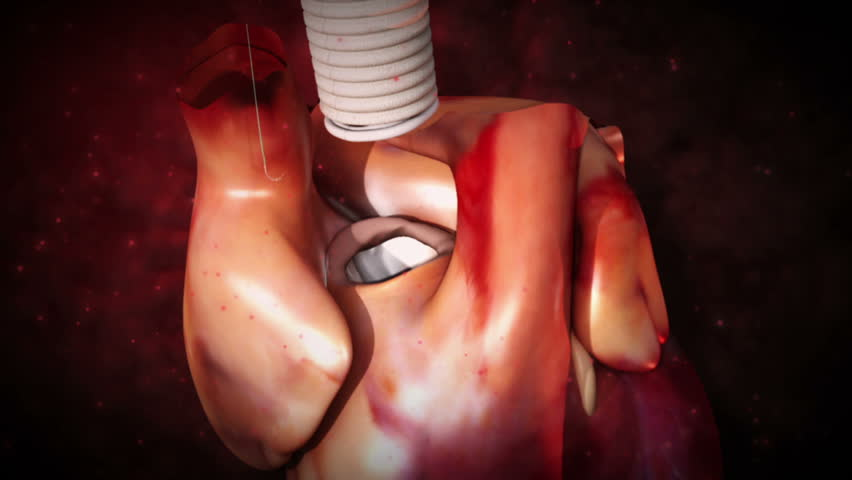 Aortic prosthesis surgery attachment of artificial prosthetic aortic valve to  heart in 3D CG animated human model