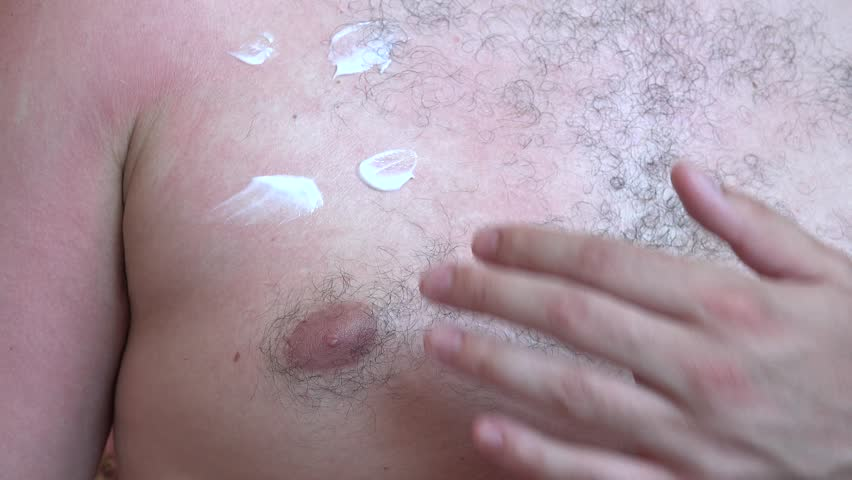 Closeup sunburn on man skin chest and arms spreading healing soothing balm cream