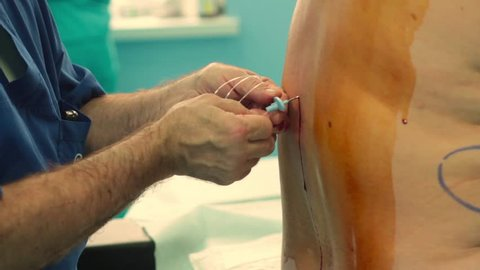 doctor, through a huge needle, inserts the tube into the spine of the parsent for the procedure of epidural anesthesia