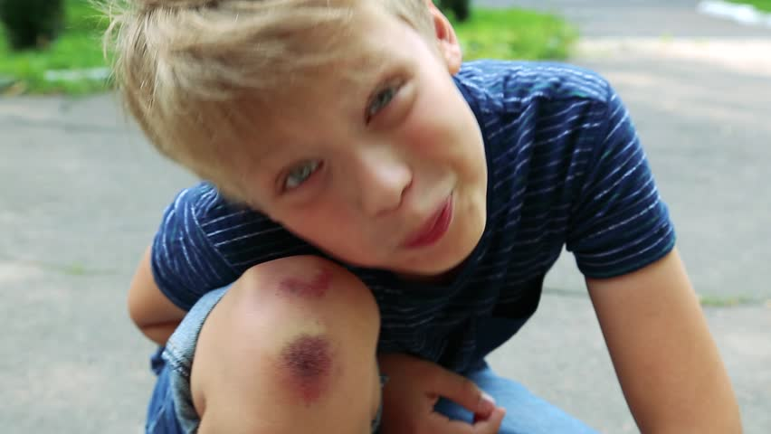 Closeup of injured young kid's knee after he fell down on pavement. Boy poses for camera showing wounded scraped leg. Real time full hd video footage. | Shutterstock HD Video #29848423