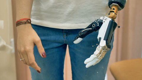 Robotic prosthesis arm connected to a disabled woman hand. 4K.