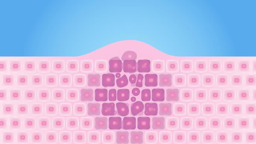 Skin cancer cells in a growing tumor graphic animation