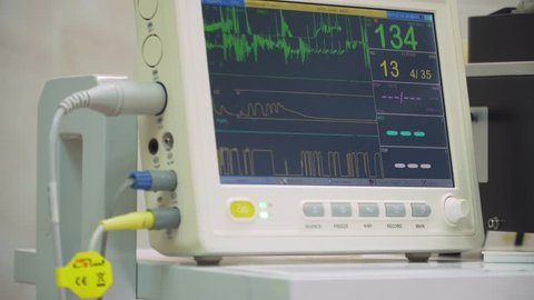 Electrocardiogram in hospital surgery operating theater emergency room showing patient heart rate. Monitoring patient's vital sign in operating room. Cardiogram monitor during surgery in operation