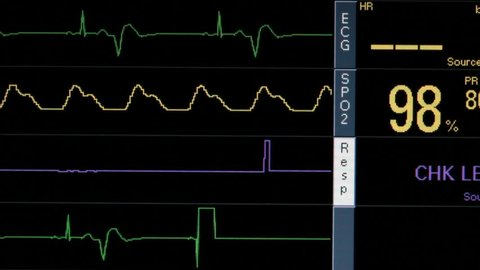 Vital signs monitor, close up, displays EKG heart failure, weakening respiration, oxygen saturation rates, ending in flatlines, patient death. 1080p
