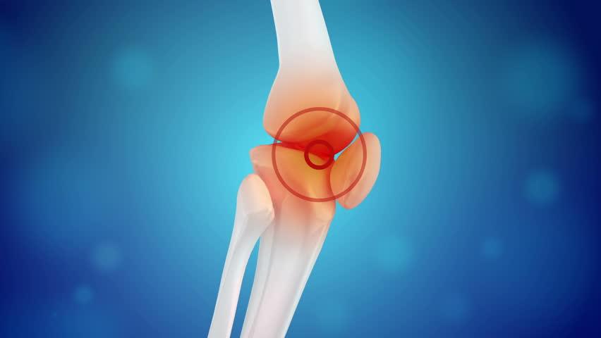 Knee pain animation
