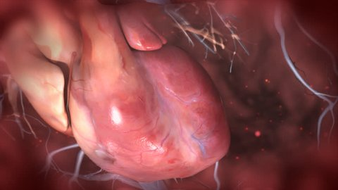 3d animated human heart with coronary blood vessels atrium ventricles beating rapidly showing abnormal irregular cardiac rhythm as seen in myocardial infarction heart attack or tachycardia