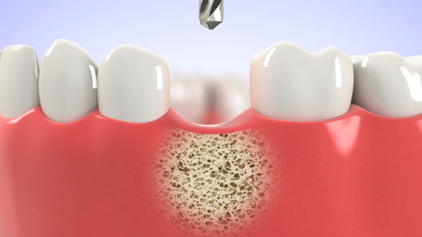 High quality 3D animation showing the installation process of dental implants.