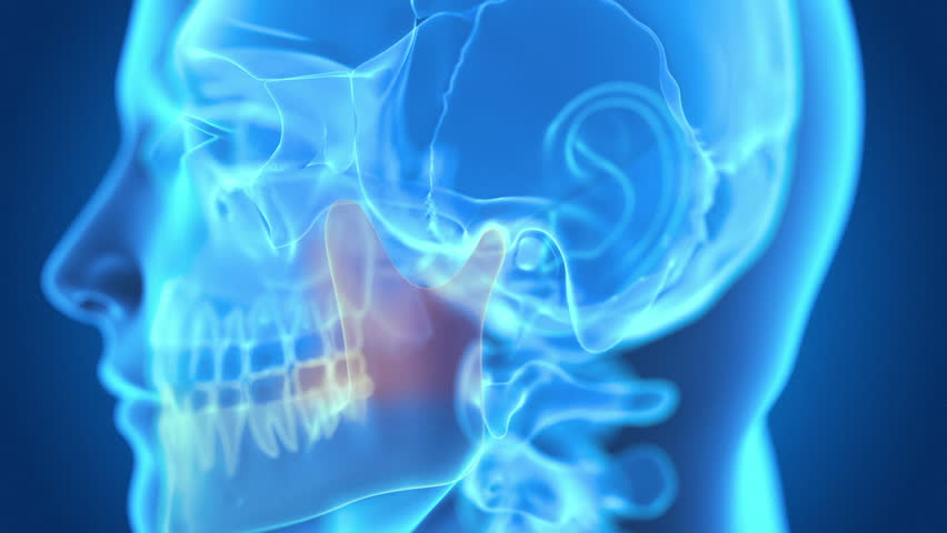 Header of jaw