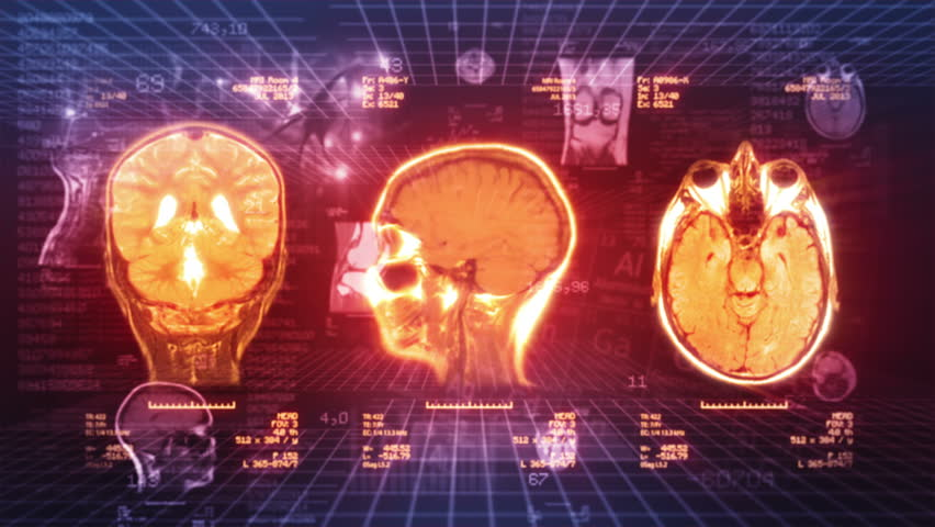 Medical Background. Video showing MRI, neurons, chart, numbers and data animations. Loopable. Red/orange. Locked.  MORE COLOR OPTIONS IN MY PORTFOLIO.