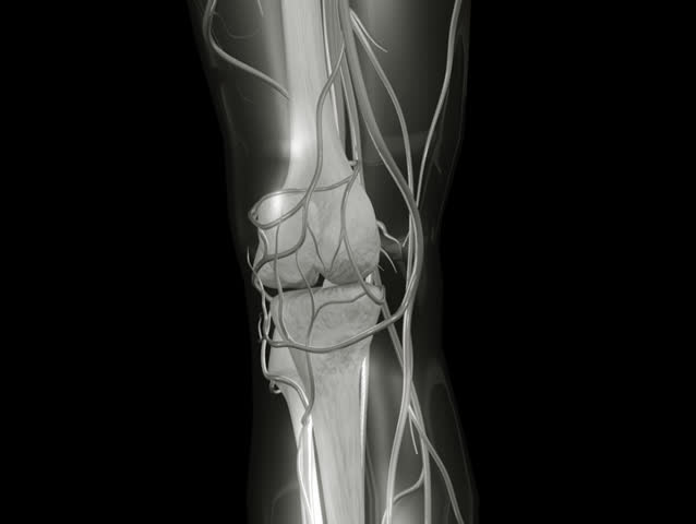 NTSC Knee X-ray