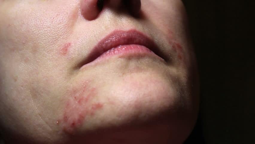Header of allergic