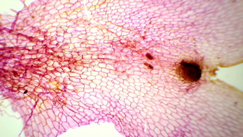Header of prothallium
