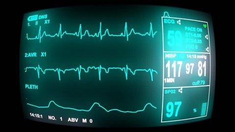 4k ECG monitor screen, hd, 1080p high definition, seamless loop  (ultra Hd, seamless loop, 3840 X 2160, ready for compositing)