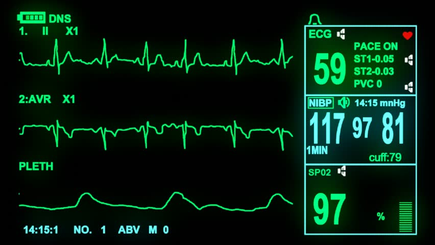 how to read a ecg monitor